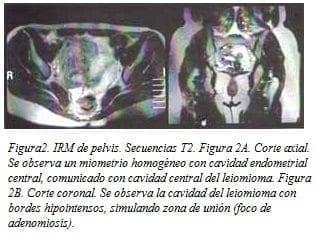 Miometrio Homogéneo con cavidad Endometrial central