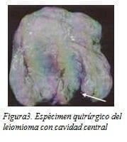 Espécimen Quirúrgico del Leiomioma con Cavidad Central