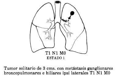 Metástasis Ganglionares Broncopulmonares