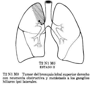 Neumonía Obstructiva y Metástasis