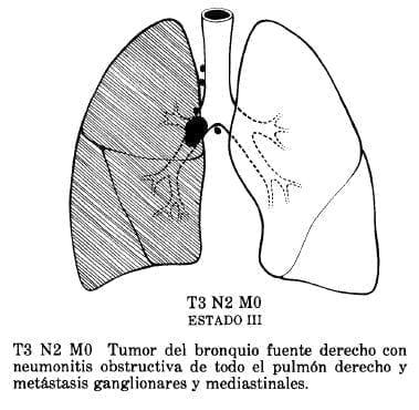 Tumor del Bronquio