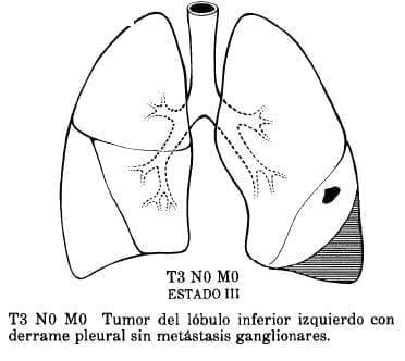 Tumor del Lóbulo