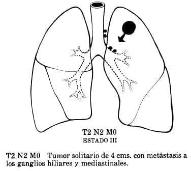 Tumor Solitario de 4 cms. con Metástasis