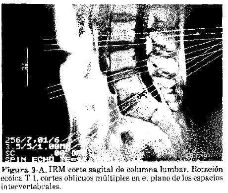 IRM corte sagital de columna lumbar