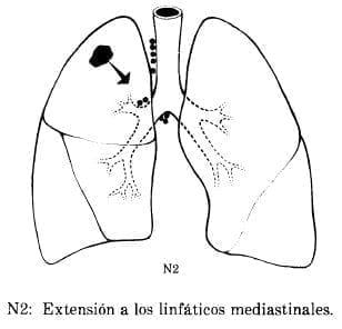 Extensión a los Linfáticos Mediastinales