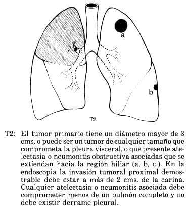 Atelectasia o Neumonitis Obstructiva asociadas que se extiendan hacia la región Hiliar