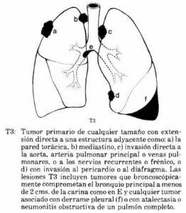 Tumor primario de cualquier tamaño