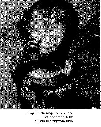 Abdomen Fetal Ausencia Urogenitoanal