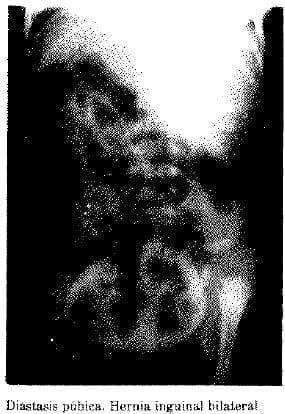 Diastasis púbica. Hernia Inguinal Bilateral