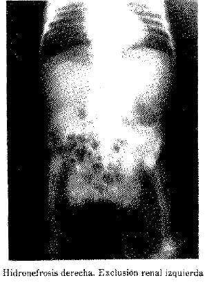 Hidronefrosis Derecha. Exclusión Renal Izquierda