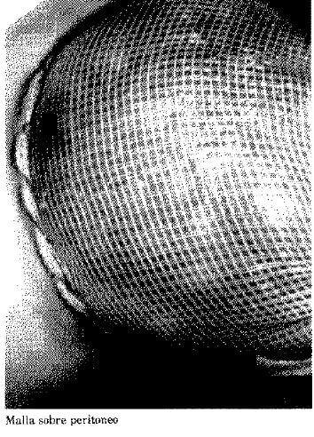 Malla sobre Peritoneo
