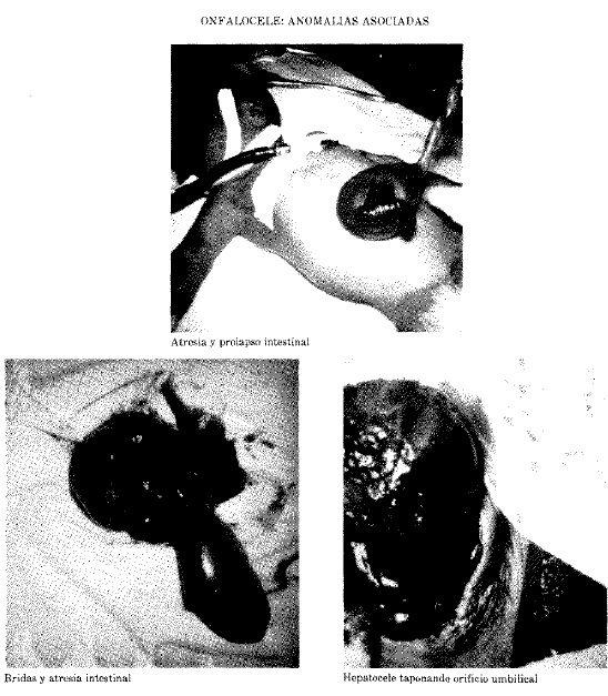 Onfalocele: Anomalías Asociadas