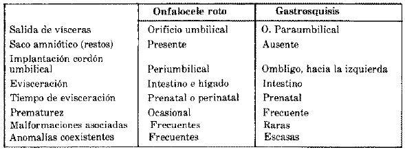 Onfalocele RotoCaracterística Diferencial