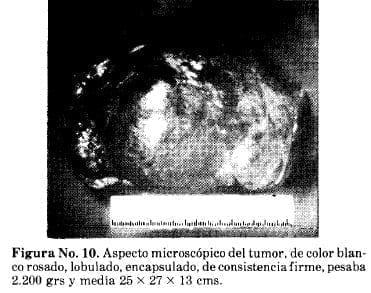 Aspecto Microscópico del Tumor