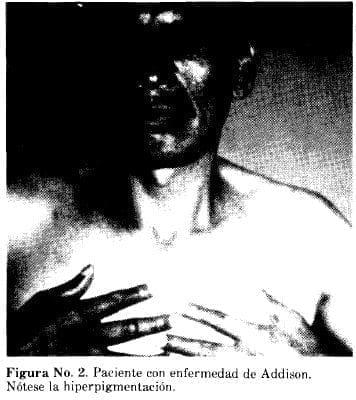 Paciente con enfermedad de Addison