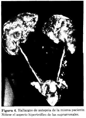 obstrucción urinaria resección de próstata turin vista láser