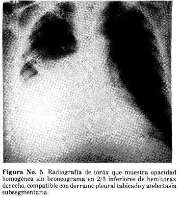 Radiografía de Toráx que muestra Opacidad Homogénea sin Broncograma