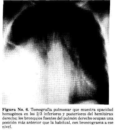 Tomografía Pulmonar que muestra Opacidad Homogénea