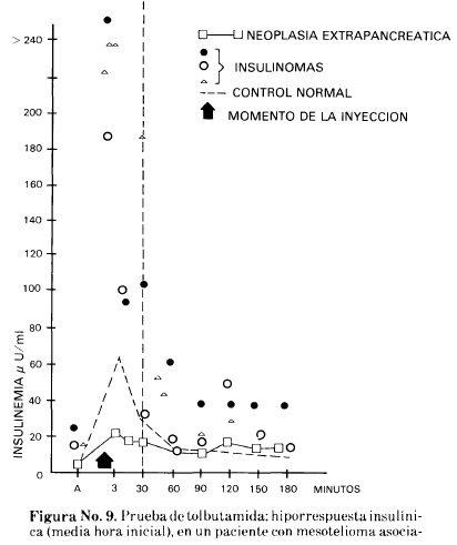 Prueba de Tolbutamida: Hiporrespuesta Insulínica