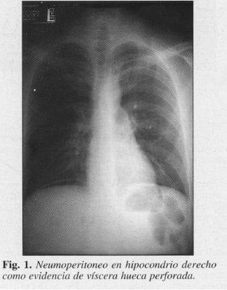 Neumoperitoneo en Hipocondrio