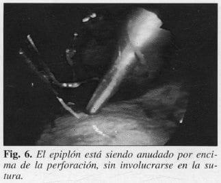 Epiplón está siendo Anudado por encima de la Perforación