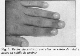 Dedos Hipocráticos con uñas en Vidrio