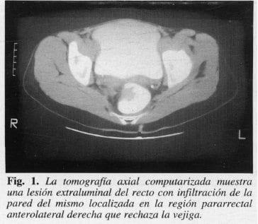 Tomografía Axial Computarizada muestra Lesión Extraluminal del Recto