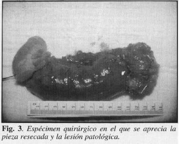 Espécimen Quirúrgico, pieza resecada y la lesión patológica
