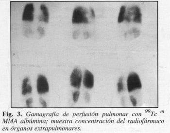 Gamagrafía de Perfusión Pulmonar