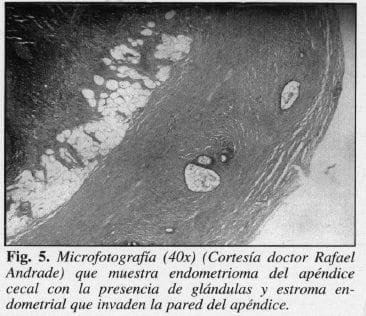 Endometrioma del Apéndice Cecal