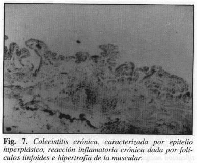 Colecistitis Crónica