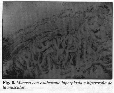 Exuberante Hiperplasia e Hipertrofia de la Muscular