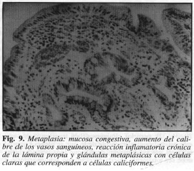 Metaplasia: Mucosa Congestiva