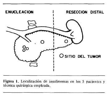 Localización de Insulinomas