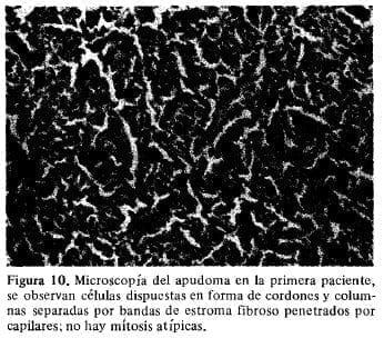 Microscopía del Apudoma en la primera Paciente