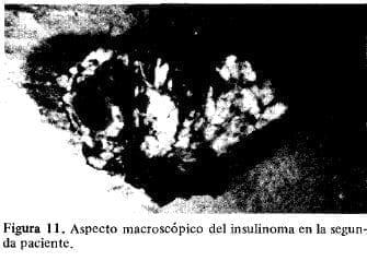 Aspecto macroscópico del insulinoma en la segunda Paciente