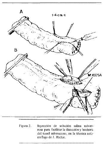 Inyección de Solución Salina