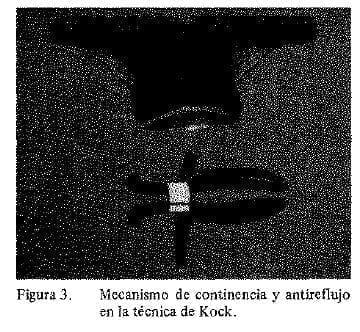 Mecanismo de ontinencia y Antireflujo