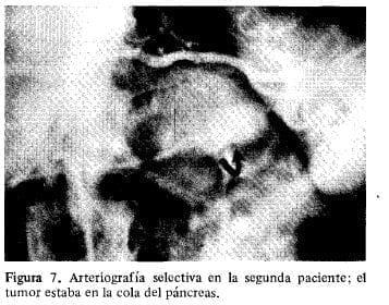 El Tumor estaba en la cola del Páncreas