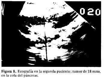 Tumor de 18 mms. en la Cola del Páncreas