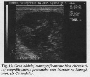 Gran nódulo, Mamográficamente bien circunscrito