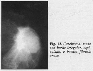 Carcinoma: masa con borde irregular