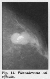 Fibroadenoma calcificado