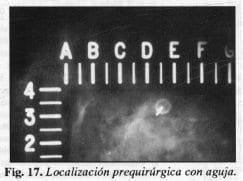 Localización prequirúrgica con aguja