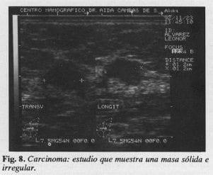 Carcinoma: Estudio que muestrauna masa sólida e irregular