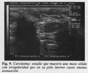 Carcinoma: polo interno causa intensa atenuación