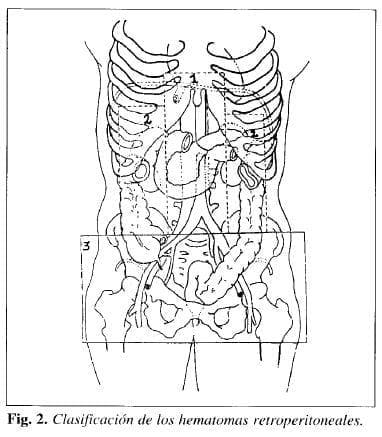 Hematomas retroperitoneales