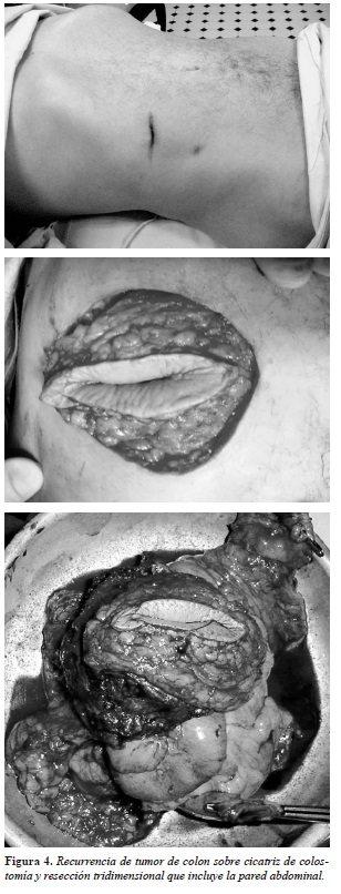 no se corra mucho después de la cirugía de próstata