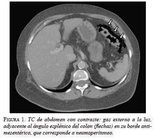TC de abdomen con contraste