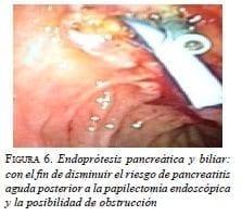 Endoprótesis pancreática y biliar